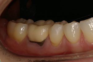 Pinhole Surgery Technique – Before Treatment