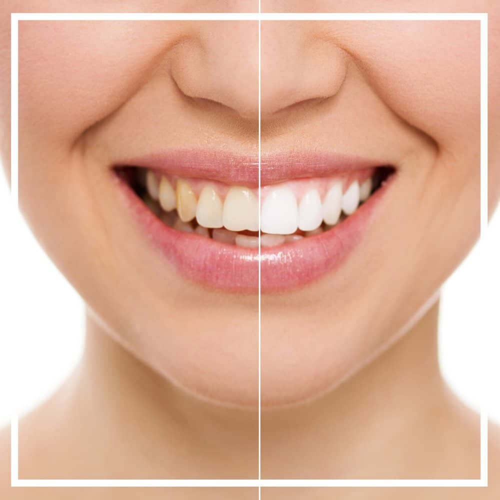 Teeth Whitening in Staines